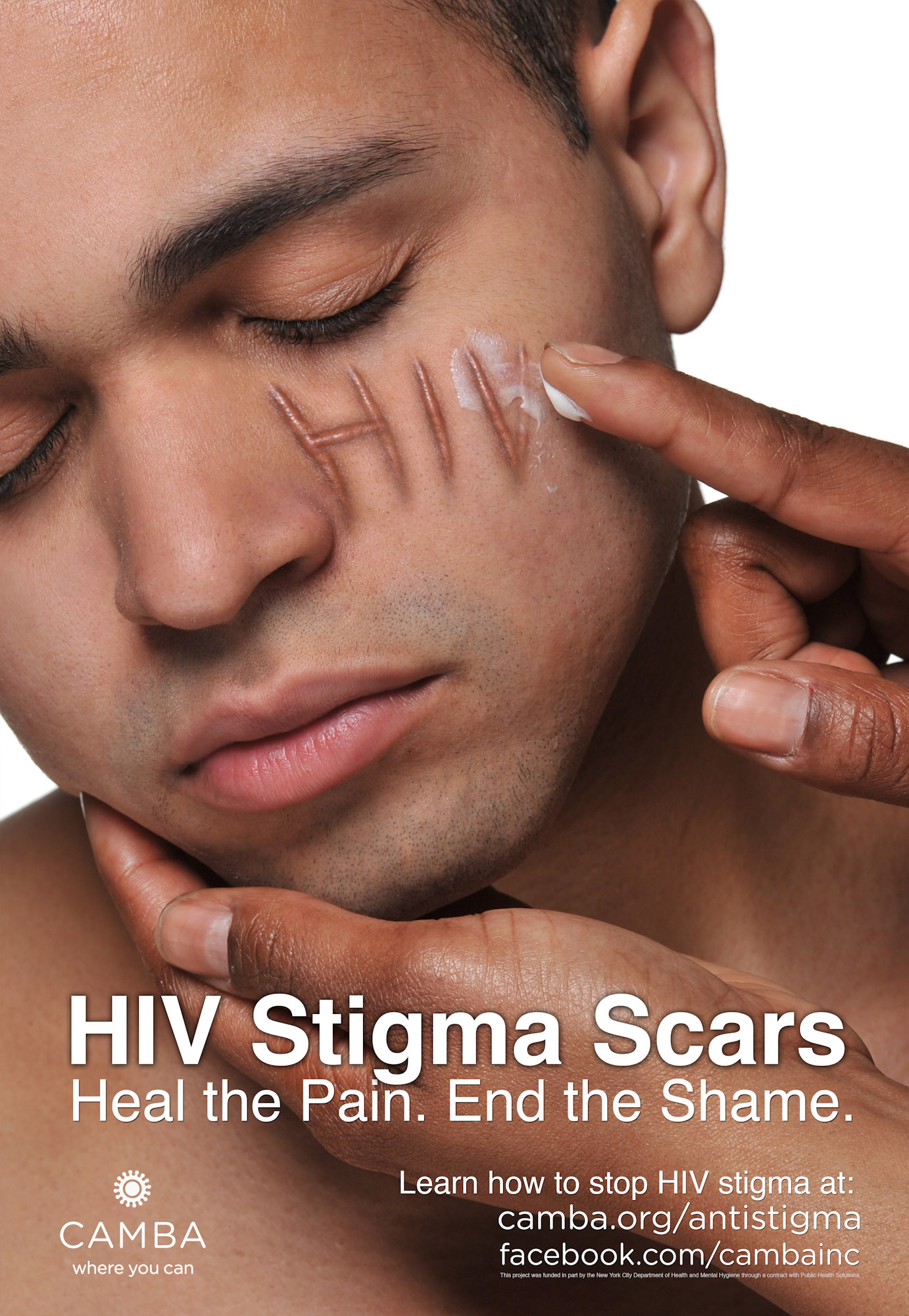 hiv aids and stigma Avert: hiv & aids discrimination and stigma kaiser family foundation: attitudes about stigma and discrimination related to hiv/aids  webmd does not provide medical advice, diagnosis or.