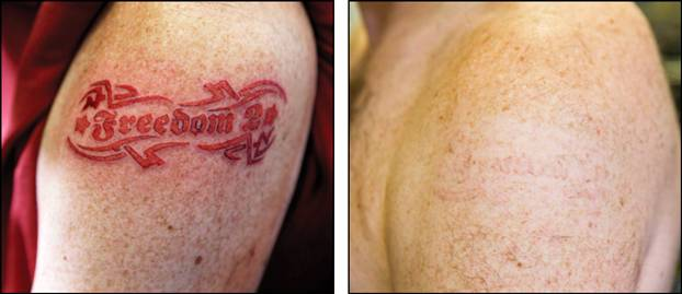 Отшелушивается кожа на тату
