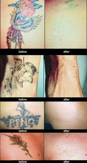 These are real Tattoo Removal before and after photos after using the safest, fastest and most effective tattoo removal currently available.