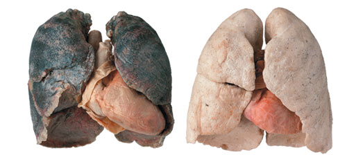 Plastinated smoker and non-smoker lungs from Gunther von Hagens' BODY WORLDS & The Brain exhibit at OMSI