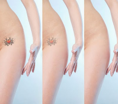 New at home tattoo removal method uses natural products to for I want to remove my tattoo at home